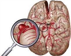 beyin-embolisi