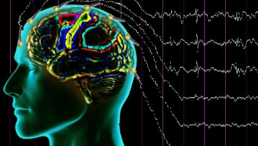 epilepsi-528x300