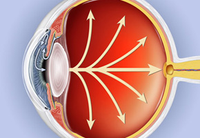 glaucoma_eye_290_b1