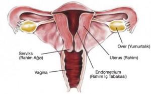 rahim kanseri