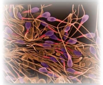 sperm11-360x300